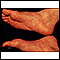 Reiter's syndrome - view of the feet